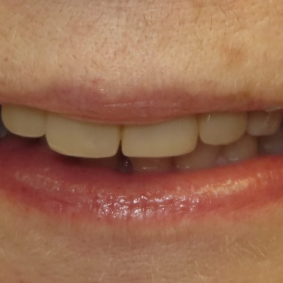 Composite Crowns