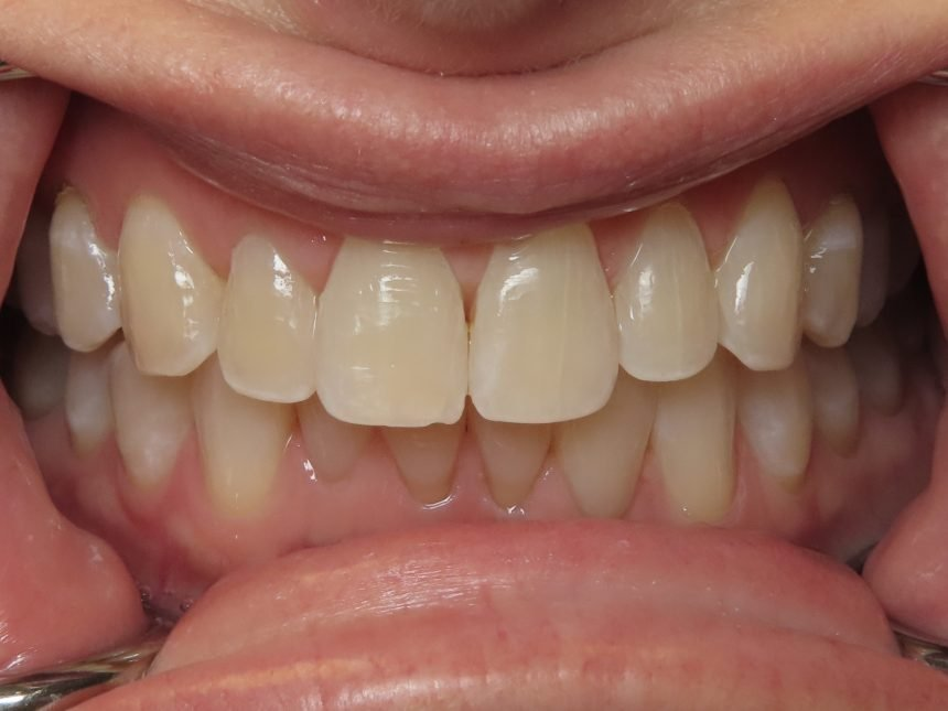 Icon Resin Infiltration