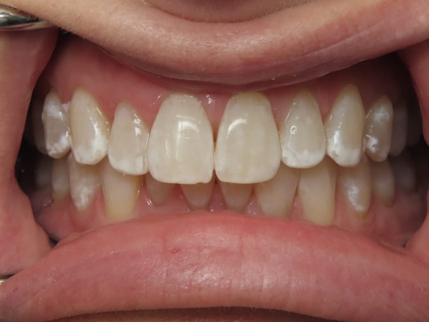 Phillips Zoom! In-Office Whitening